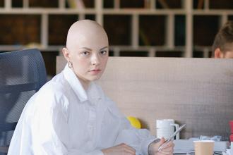 Alopécia a všetko, čo je o nej dobré vedieť