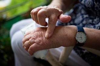 Artróza verzus artritída