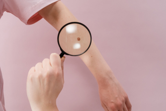 Melanóm − ako ho spoznať a ako sa pred ním chrániť