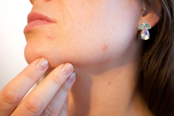 Prípravky, ktoré vás zbavia akné