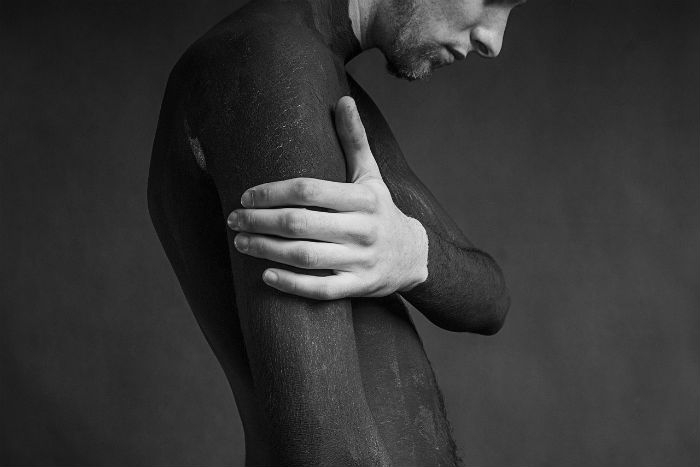 Vitiligo: Vráťte svojej pokožke prirodzenú farbu