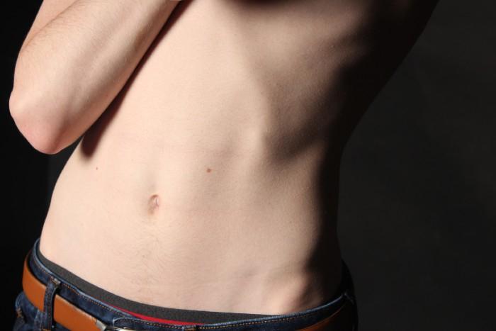 Zápal žalúdka − príznaky, liečba a prevencia